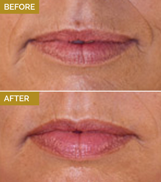 treatments-lips1