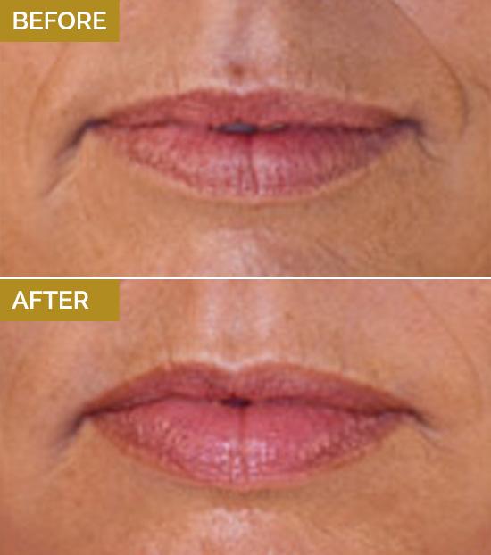 treatments-lips1