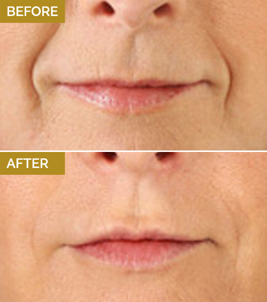 treatments-lips2