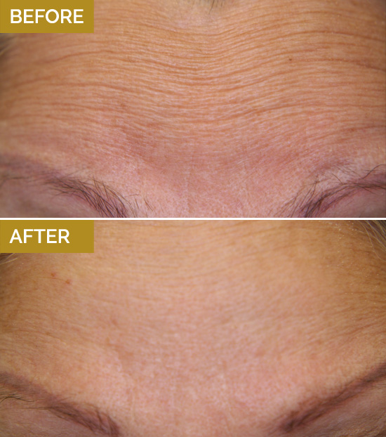 treatments-wrinkle1