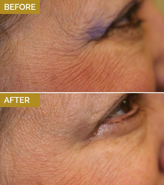 treatments-wrinkle2